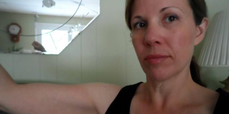 Why I Won't Have Excess Skin Removal Surgery