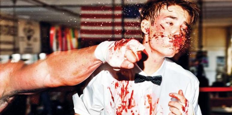 Justin Bieber beat up with a bloody nose and bruises boxing for Complex magazine