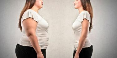 Reducing Stretch Marks After Weight Loss